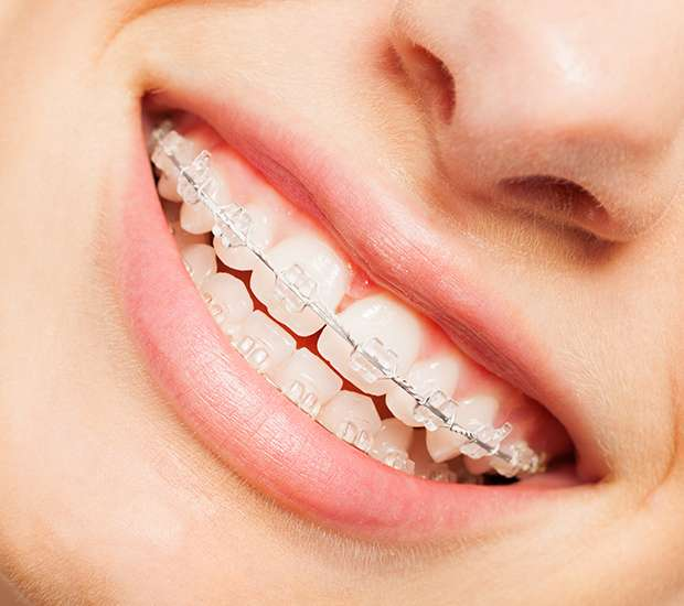 Dearborn Clear Braces