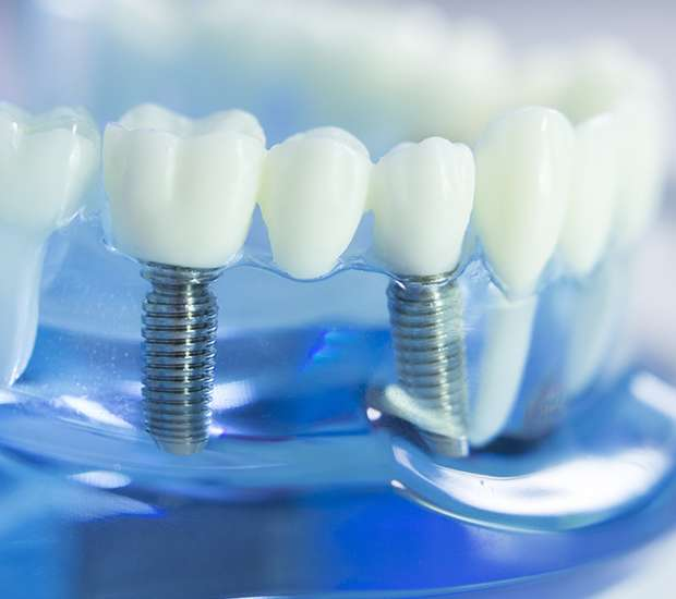 Dearborn Dental Implants