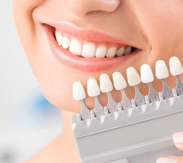 Dearborn Dental Veneers and Dental Laminates
