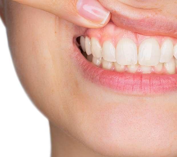Dearborn Gum Disease