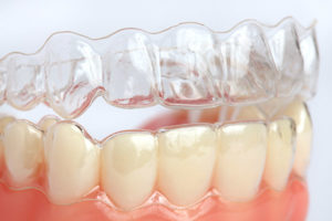 Your Golden Years Are An Excellent Time For Invisalign®